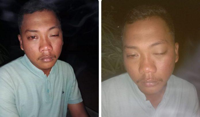 Oknum Kepalo tiyuh Sumberejo main hakim sendiri 3 Pemuda Karang Taruna dipukul